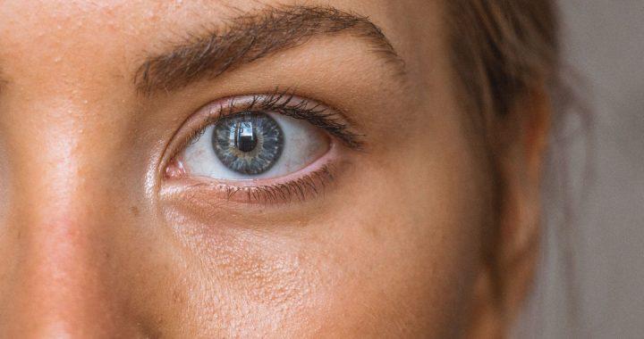 frida estetica guadarrama claves para entender acne